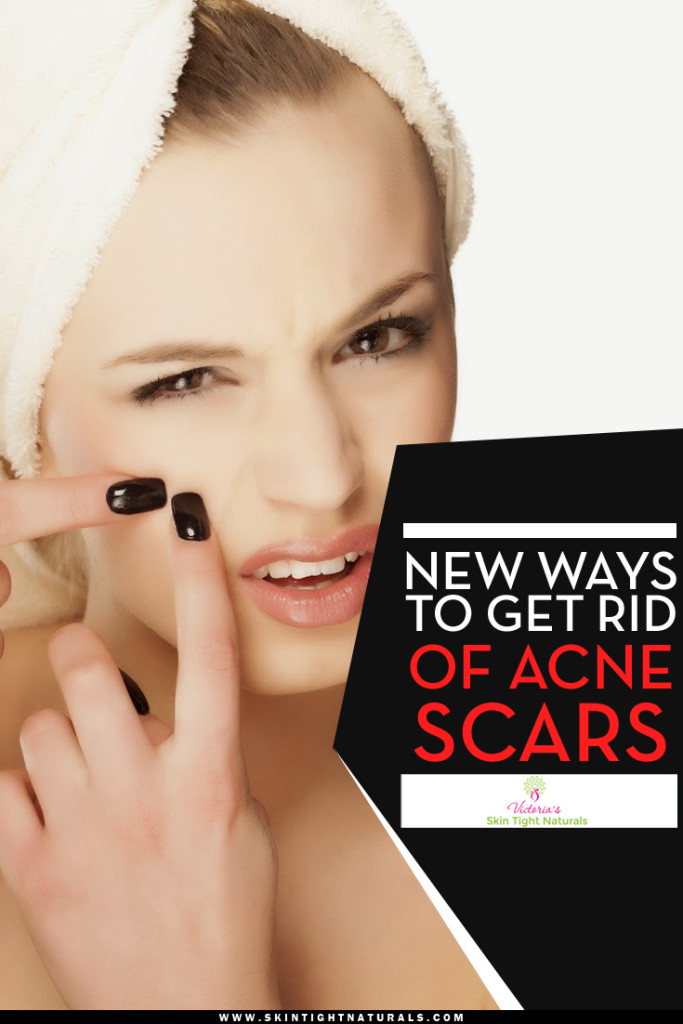 New Ways To Get Rid of Acne Scars