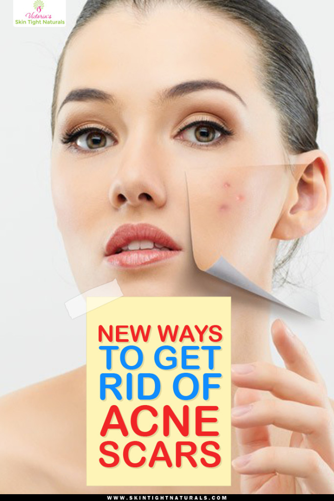 Good ways to get rid of acne