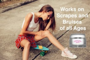 scrapes and bruises Scar Cream and Bruise Cream