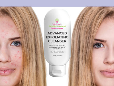 5 Glycolic Exfoliation Acne Treatment Tips You Can Use Today