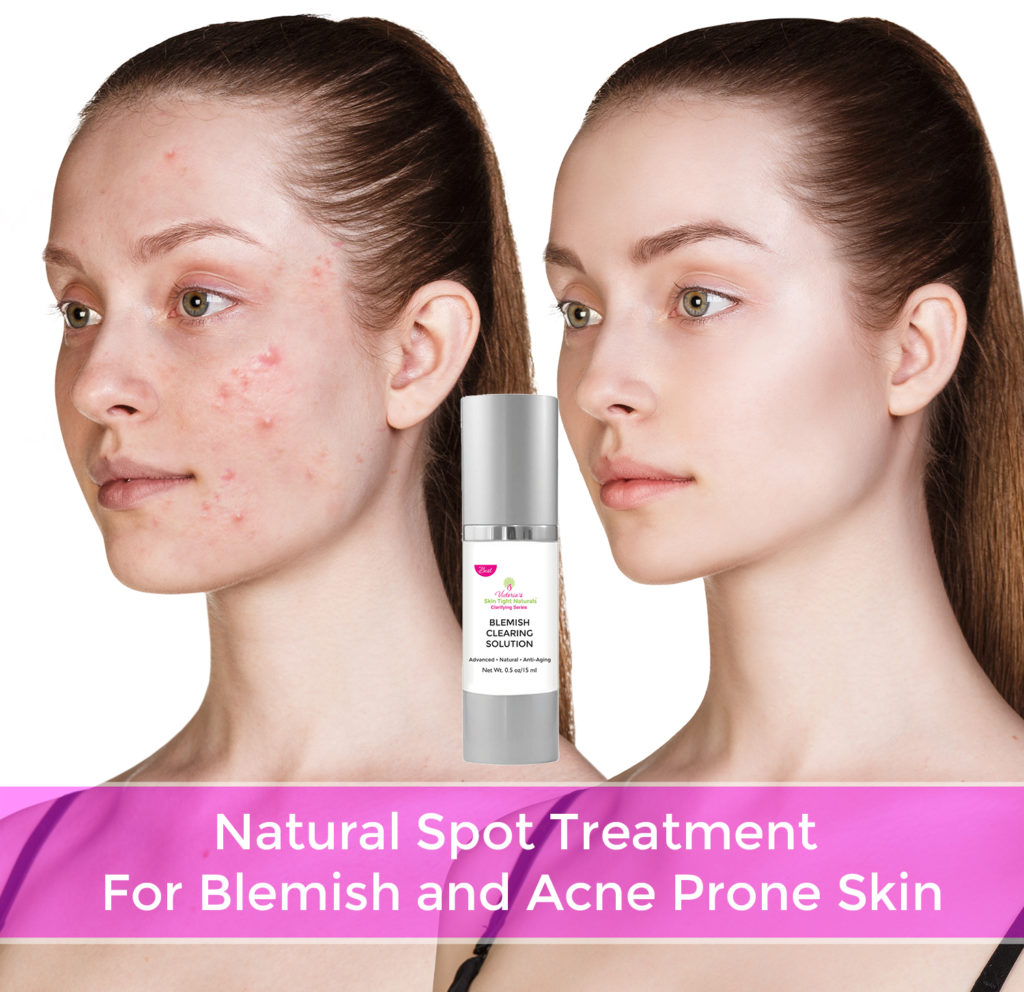 Help How To Treat Hormonal Acne Stop Breakouts Skin Tight Naturals