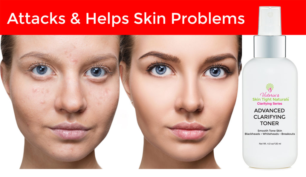 Help! How To Treat Hormonal Acne & Stop Breakouts!