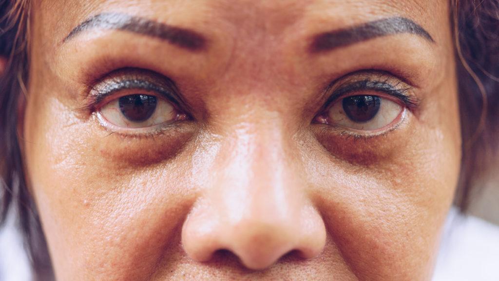 Eyebrow Tattoo Horror Stories Skin Tight Naturals